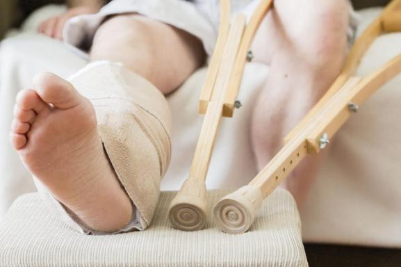 Pengobatan Tulang Retak Yang Alami & Terbukti Ampuh